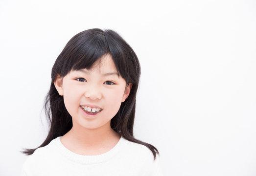 歯の矯正をする小学生の女の子