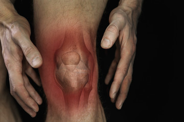 knee pain. male leg with bone joint inflammation illustration