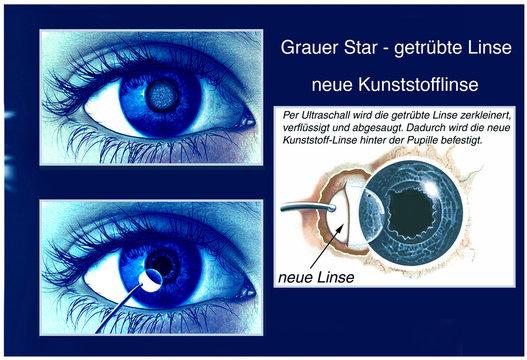 Grauer Star. Getrübte Linse