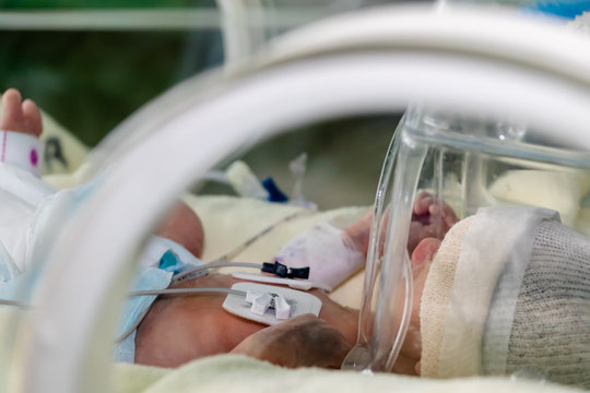 A sick premature Newborn baby in an incubator. Receiving oxygen in a transparent hood overhead, with electrodes on chest.