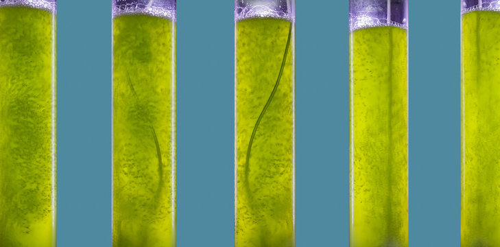 Photobioreactor in Algae fuel biofuel industry.  Algae fuel or algal biofuel is an alternative to fossil fuel that uses algae as its source of natural deposits