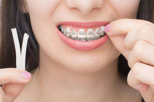 Applying orthodoentic wax on the dental braces. Brackets on the teeth after whitening. Self-ligating brackets with metal ties and gray elastics or rubber bands for perfect smile.