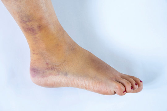 Woman's leg with sprained ankle isolated on white background. Twisted ankle with bruise isolated on white background.  Athlete runner training accident.