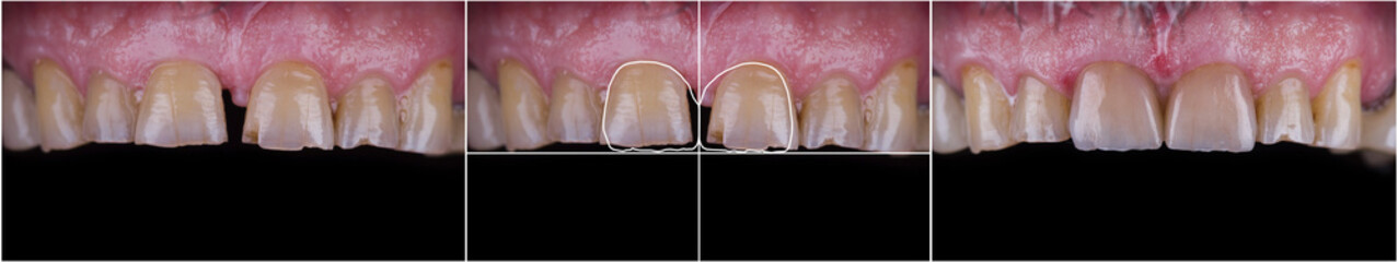 before and after picture of dental treatment by 2 unit press ceramic cowns