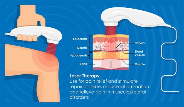 Laser Pain Therapy Handheld Portable Electronic Device for Relief Pain