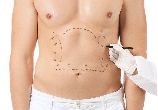 Plastic surgeon applying marking on male body against white background