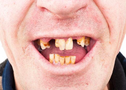 Bad teeth smoker. Missing and decaying teeth. Caries
