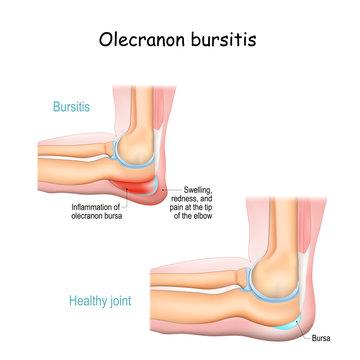 Olecranon bursitis. student elbow