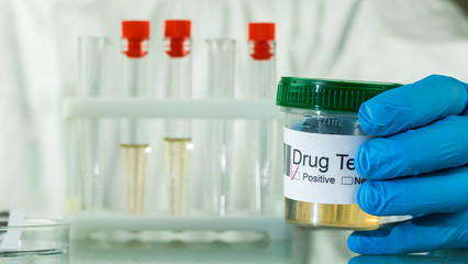 Hand in glove holds a jar with urine analysis where mark a positive test for doping or drug