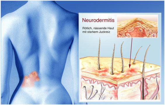 Haur-Neurodermitis.Schuppenflechte