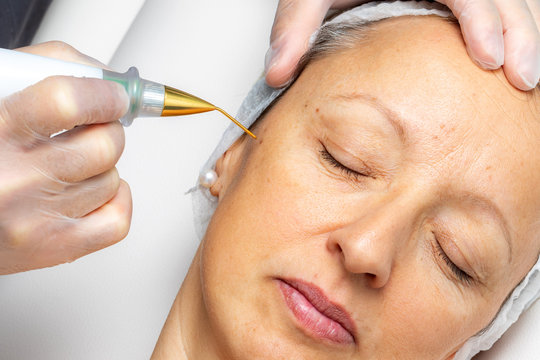 Top view of laser plasma pen removing facial wart on middle aged woman.
