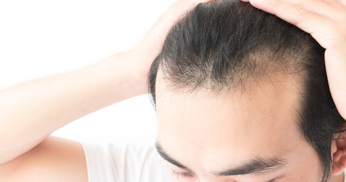 High Section Of Man With Hair Loss Problem Against White Background