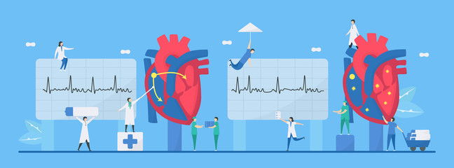 Cardiology vector illustration. This heart disease problem is arrhythmia. Comparison of normal and unusual signals from left to right respectively. Tiny flat design.