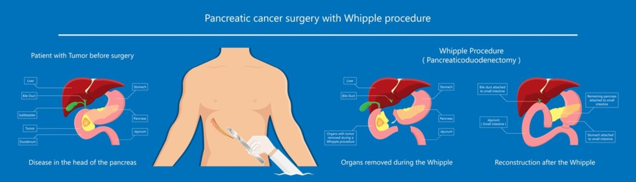 Whipple procedure pancreaticoduodenectomy Pancreatic cancer treatment total pancreatectomy Small bowel surgical
