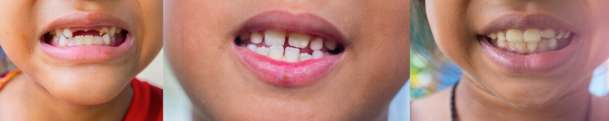 Many pictures of the teeth and gums of the child are deformed and many problems are unattractive.