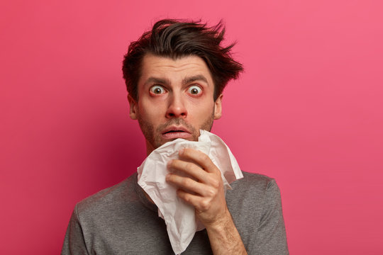 Stunned sick man has flu, virus or allergy respiratory, red watery eyes, blows nose in tissue, finds out about serious disease, poses over pink background. Health, medicine and symptoms concept