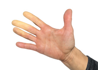Hand with Raynaud's syndrome, Raynaud's phenomenon or Raynaud's  diseases. Female hand. Fingers turned white (pallor) due to lack of blood flow decreased with vasoconstriction. Isolated on white.