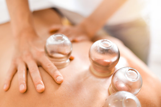 Detail of a woman therapist hands giving cupping treatment on back.
