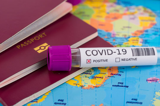 Coronavirus and travel concept. Epidemic in Wuhan, China. World map showing countries with COVID-19 cases. Blood sample in a tube, world map, passport and mask. Travel restrictions and quarantine