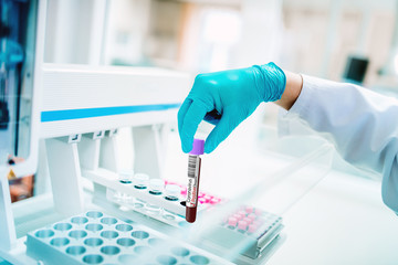 Medical scientist testing blood sample for coronavirus, covid19 pandemic. Doctor specialist working in healthcare system