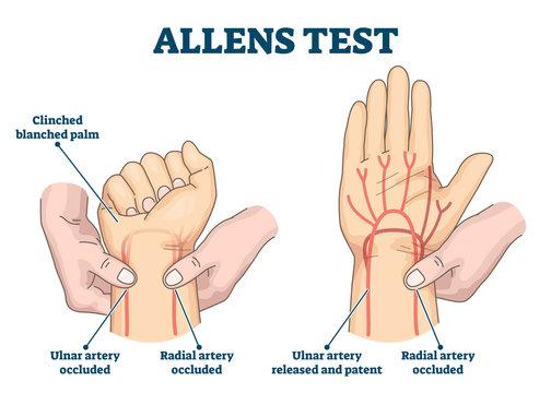 Allens test vector illustration. Physical arterial blood examination scheme