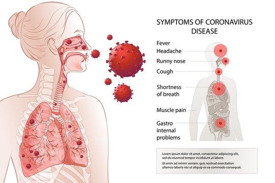 Human MERS-Cov symptoms risk factors. Virus outbreak spread pandemic.