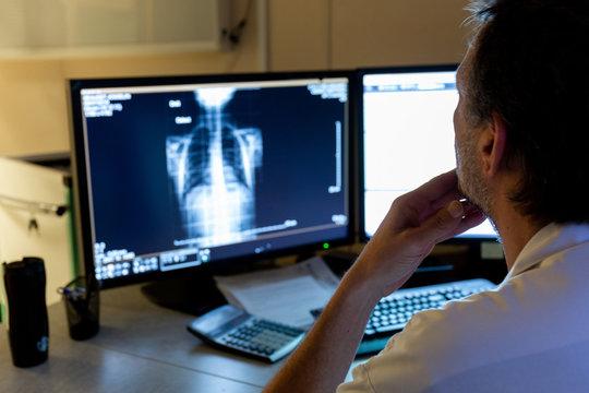 Interprétation radiographie pulmonaire coronavirus sur écran bureau par médecin radiologue