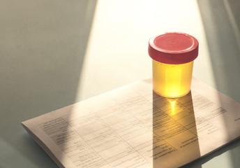 Urinalysis, Drug Testing, Drug. Plastic jars for medical tests.. Urine test
