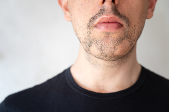 Close up of alopecia areata on a man's beard