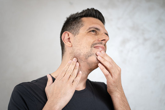 Man showing alopecia areata on beard