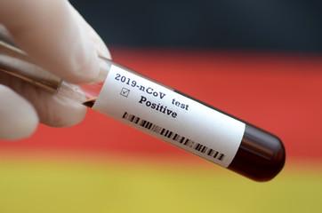 Stock photo of holding tube with Blood Test (novel Coronavirus 2019 disease,COVID-19,nCoV) and flag of Germany. Germany virus outbreak.