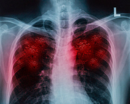 chest x-ray with lung injury from corona virus