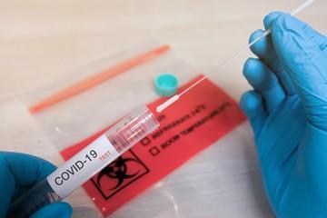 COVID-19 Nasal swab laboratory test in hospital lab