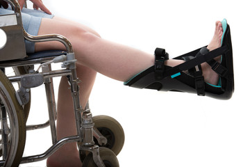Close up of woman in wheelchair and  night splint foot orthosis