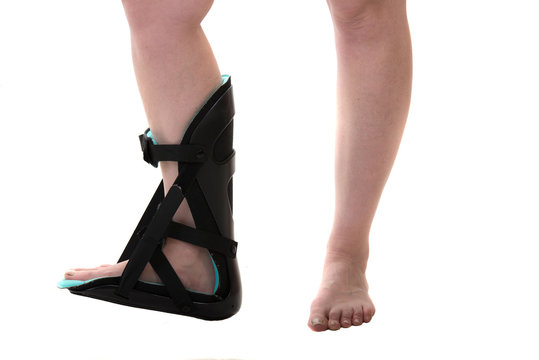 Close up of woman leg with ankle foot orthosis brace