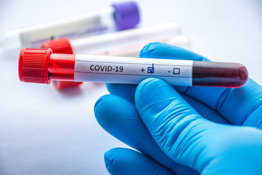 Laboratory diagnosis of coronavirus or COVID-19 concept photos. In close-up frame of doctor laboratory technician hand, which holds tube with blood and marked COVID-19 indicating positive test result
