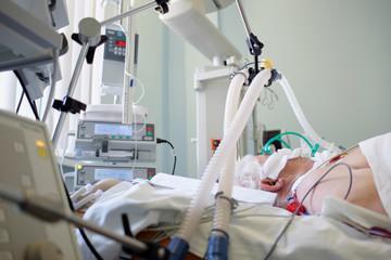 Coronavirus pandemic. Patient with coronavirus pneumonia in critical state. Intubated senior under ventilator lying in coma in intensive care department.