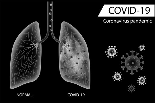 Human lungs compare between normal side and coronavirus disease damage ,Balck and white design vector