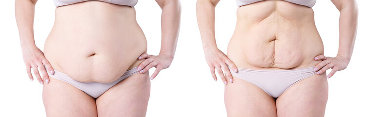Woman's body before and after weight loss isolated on white background Fotobehang