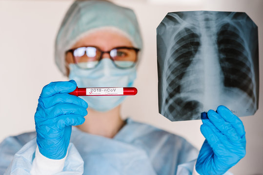 Doctor specialist pulmonary medicine holding radiological, chest x-ray film for medical diagnosis on patient health on infected coronavirus. A hands hold a test tube with biological sample blood.
