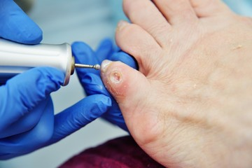 Fotorolgordijn Pedicure excision of calluses on the toe pedicure machine close-up