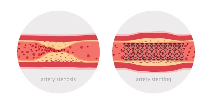 Stenting sick human artery, before and after, flat design illustration