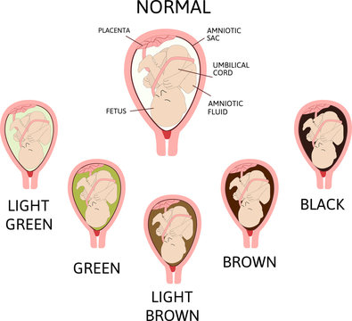 Color of amniotic fluid in the amniotic sac. normal and danger variants.