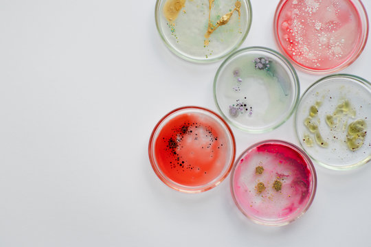 Viruses and bacteria in a Petri dish, studying the growth of bacteria on different samples in the laboratory.