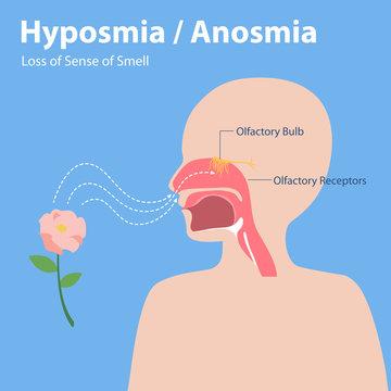 Hyposmia Anosmia, Loss of Sense of Smell Info graphic elements the signs of corona virus Symptoms , Health care concept.