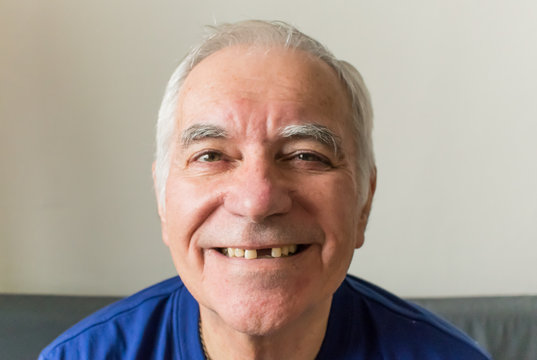 old man senior face closeup missing tooth smile proper dental care insurance health
