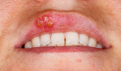 Oral herpes simplex virus infection