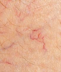 Spider veins, dilated blood vessels