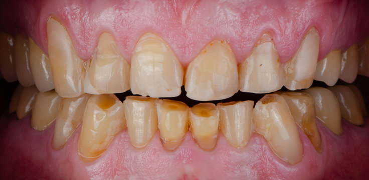 The chipped and worn teeth
