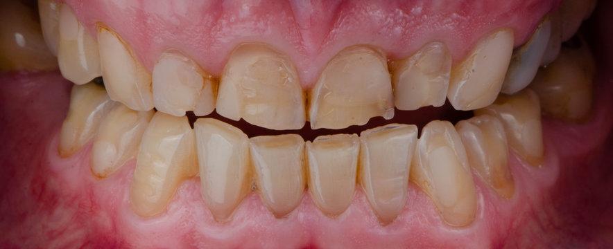 the broken and worn teeth